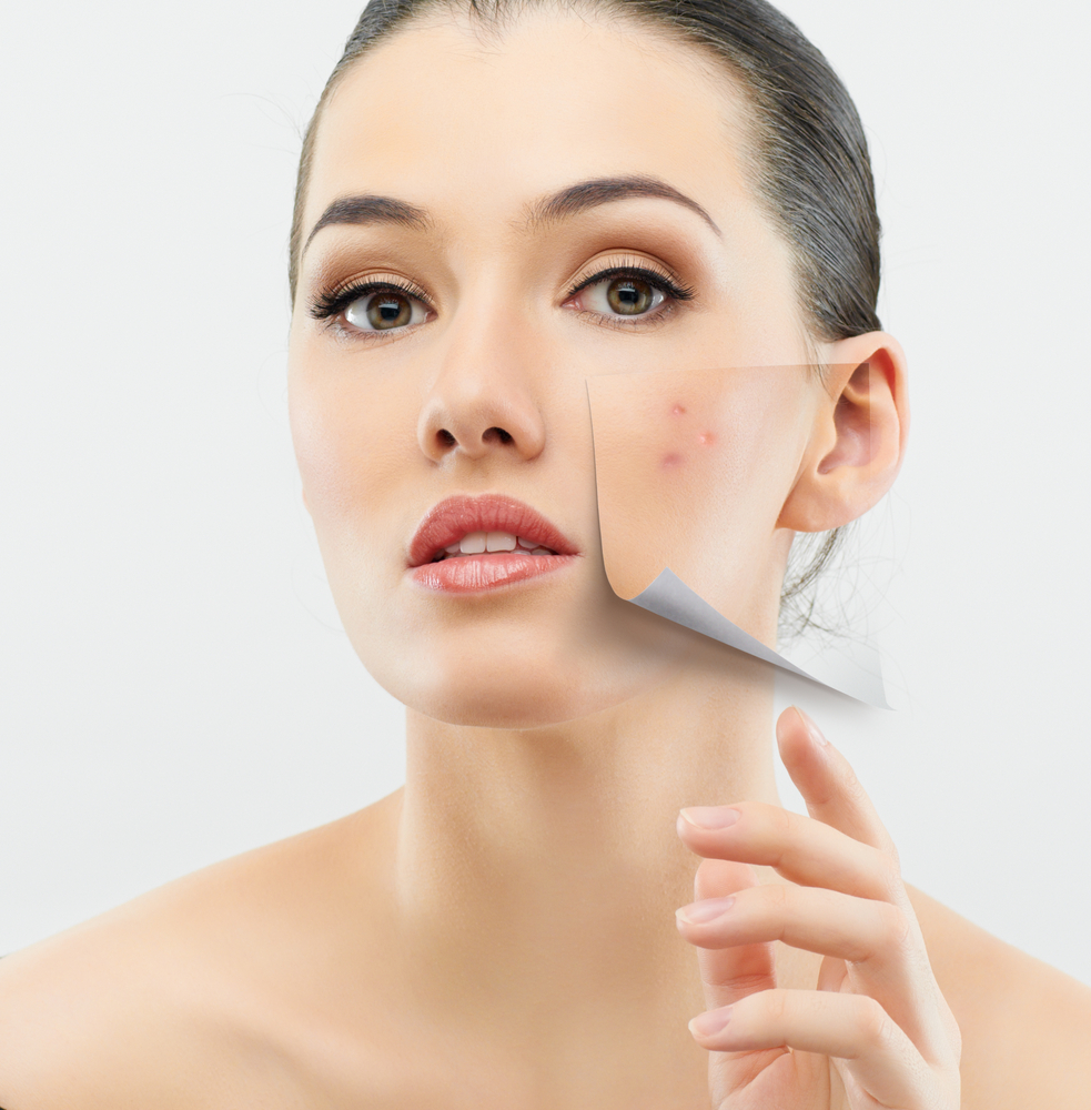 Avoid Using Any New Acne Solution