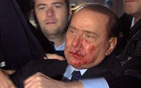 Police have overpowered and arrested a young man outside Silvio Berlusconi's hospital room