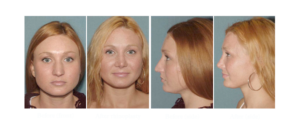 Before and after photo of a patient that opted for rhinoplasty surgery