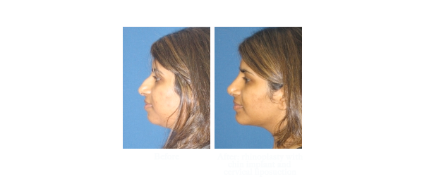 Nose surgery before and after photos of patient from La Jolla Ca