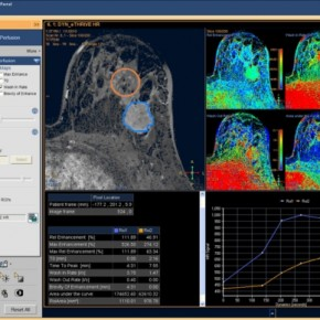 Philips' IntelliSpace Portal Now With Nuclear Medicine Apps