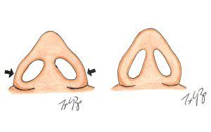 Rhinoplasty Nose Surgery Wide Base
