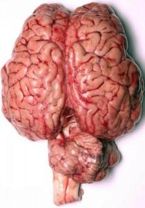 Fresh Human Brain