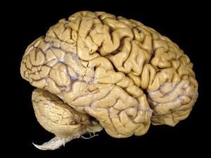 Preserved Human Brain
