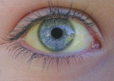 Увидив в зеркале пожелтевшие склеры глаз знайте- это одна из причин заболевания желтухой!