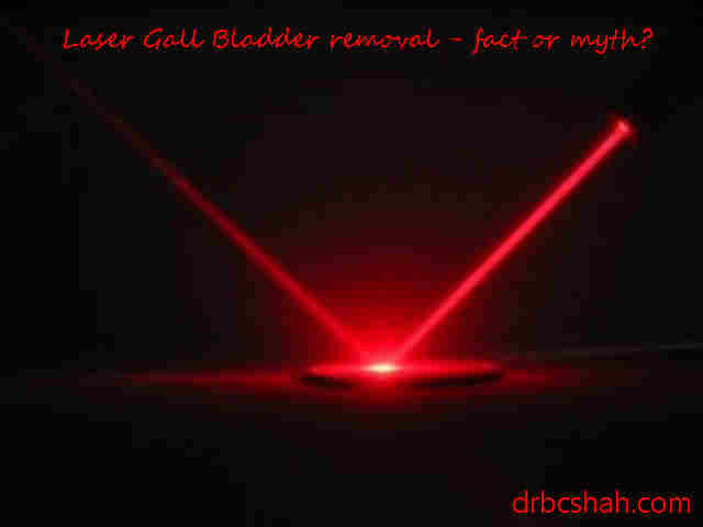 Is laser used for the removal of Gall bladder?