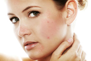 The Four Main Causes Of Teen Acne