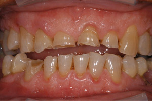 image 2 Case Study: Restoring the Smile with a Full Mouth Rehabilitation