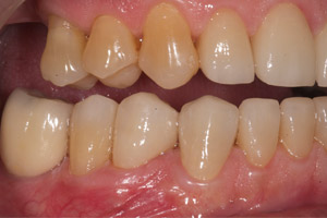image 5 Case Study: Restoring the Smile with a Full Mouth Rehabilitation