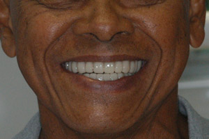 Image 6 Case Study: Restoring the Smile with a Full Mouth Rehabilitation