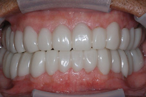 image 71 Case Study: Restoring the Smile with a Full Mouth Rehabilitation