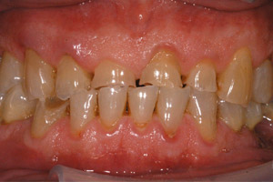 image 9 Case Study: Restoring the Smile with a Full Mouth Rehabilitation