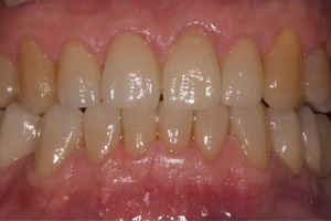 image 11 Case Study: Restoring the Smile with a Full Mouth Rehabilitation