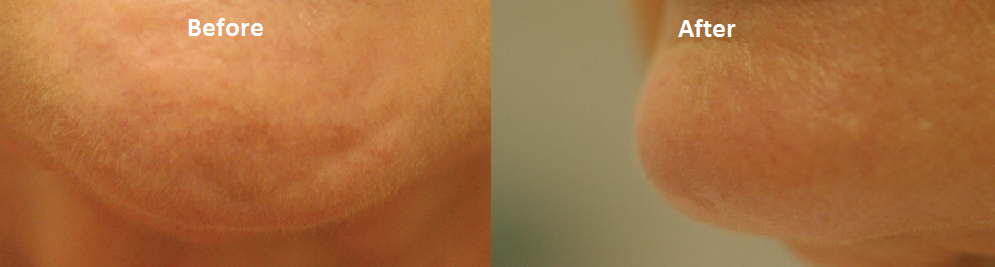 chin Case Study: Revitalising the face with a dentofacial makeover
