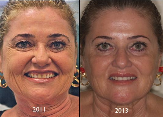 heaad Case Study: Revitalising the face with a dentofacial makeover