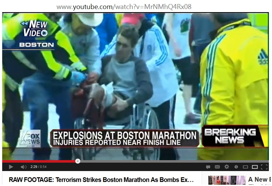 Caption Superman victim identified as Jeff Bauman Jr., holding both his blown-up legs sitting upright and looking alert being rescued on wheelchair by a Boston EMT, Boston EMS, and man in cowboy hat identified as superhero Carlos Arredondo, about 6 minutes and 43 seconds later in the theatre of the most absurd (Image from Fox News footage, April 15, 2013)