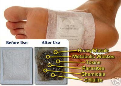 foot+patch+before+after - Detox Foot Patch - Koyok Kaki Buang Toksin