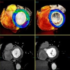 Toshiba's CT Myocardial Perfusion Imaging Technology FDA Cleared