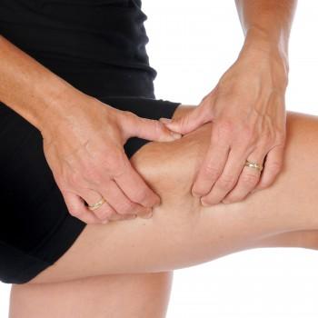 cellulite-thigh