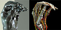 The Real Medical Conditions Behind the Deformed Hands in Rodin's Sculptures