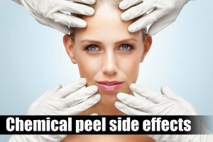 The Chemical Peel Side Effects