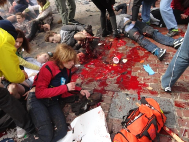Boston Marathon victim both legs blown off lying unattended on the ground and the black woman has been removed. Image via Cluesforum-info
