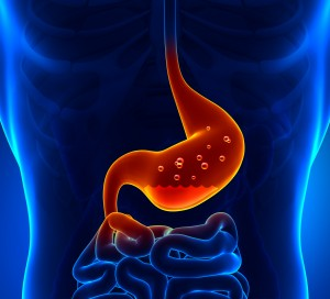 heartburn and GERD symptoms, causes and treatments