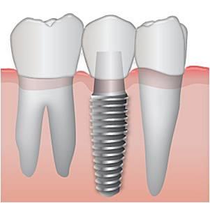 השתלות שיניים לאנשים עם צפיפיות עצם