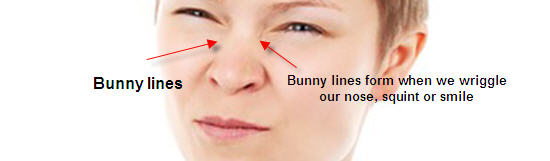 What are Bunny Lines