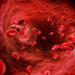 krwotoczne zapalenie pęcherza