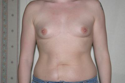 Breast augmentation - Sarah Flowers - before - front