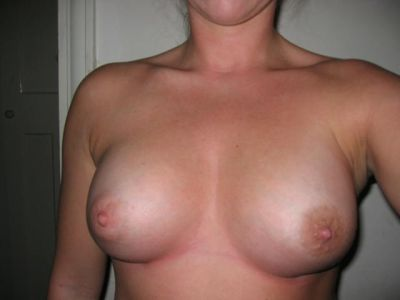 Breast augmentation - Sarah Flowers - after - front