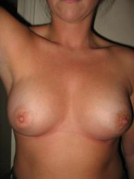 Breast augmentation - Sarah Flowers - after
