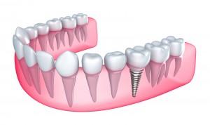 Dentla Implant Marietta Dentist