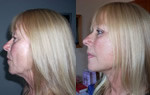 Facelift surgery - Sylvia Hauser