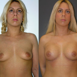 Breast enlargement - before and after - Susie Cowan