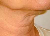 How to Get Rid of Neck Wrinkles