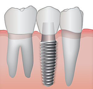 Dental Implant Marietta