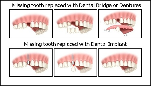 Dental Implants Benefits