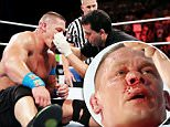 John Cena Broken Nose