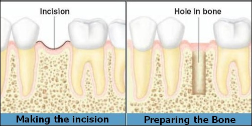 dental implants placement steps