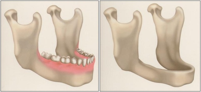 Bone Resorption - Dental Implants