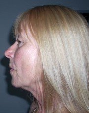 Facelift Surgery procedure