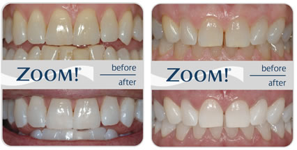 zoom-teeth-whitening-1