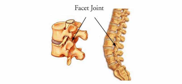 facet-joint back injury