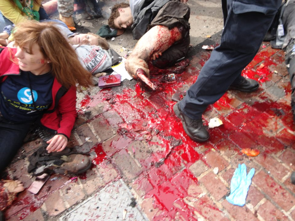 Boston Marathon victim with both legs blown off lying unattended on the ground and the black woman has been removed. Image via LiveLeak.com