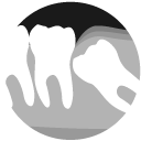 Oral Surgery in Takapuna