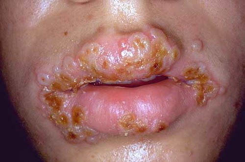 3 Quick Survival Tips afters catching a STD... SEE