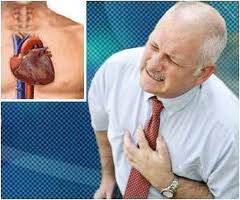 having a heart attackThe Intelligent Way to Cope with Heart Disease
