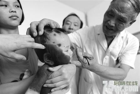 """福建6月大女婴患""""兽皮症""""全身一半皮肤有黑斑"""